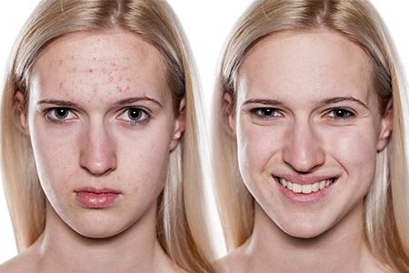 Comment se débarrasser de l'acné?